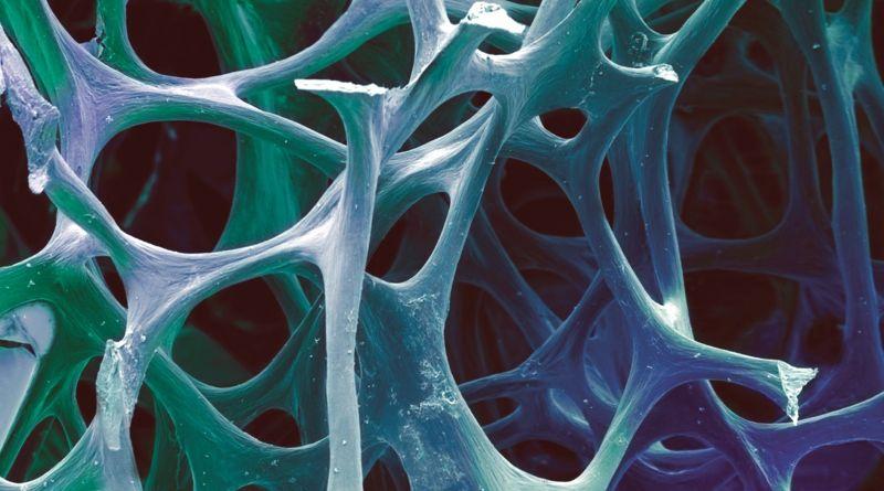 Seminar Nasional Biomaterial 2012